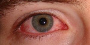 eye herpes treatment