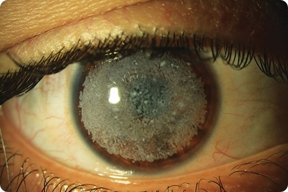 Can herpes be a reason for corneal blindness- Eye Herpes Treatment