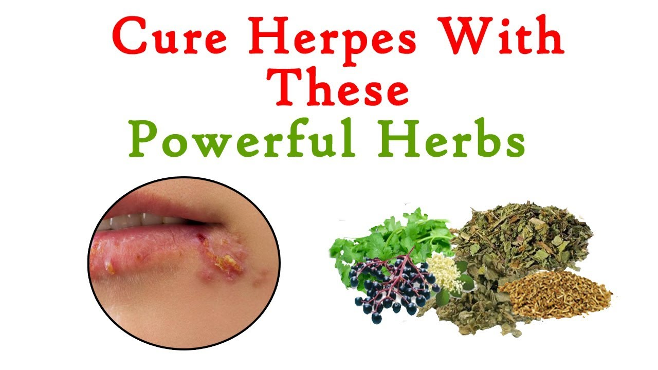 herpes cure 2019 - slubne-suknie info